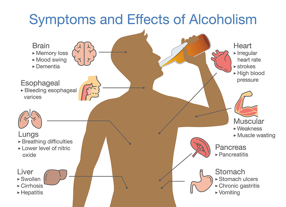 Early Signs Of Alcoholism - California